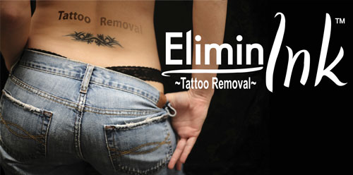 Eliminink Tattoo Removal